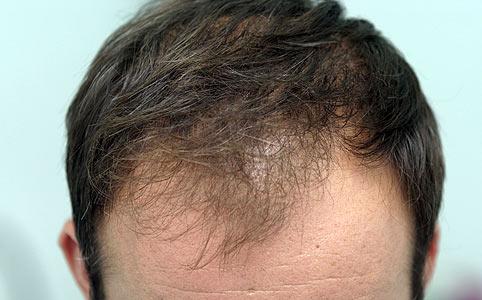 száraz fejbőr hajhullás