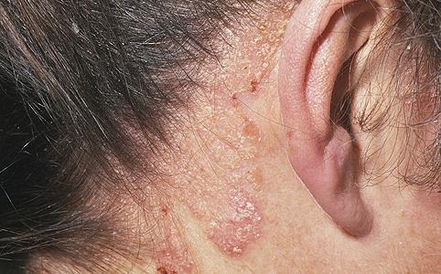 pikkelysömör az ágyékban hogyan lehet gyógyítani kenőcs pikkelysömörhöz a fejbőrön