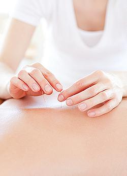 Győzd le a betegséget akupunktúrával!