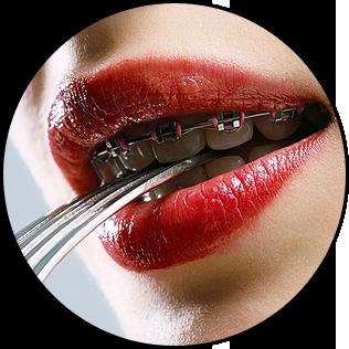 5+1 nő fogszabályzóval: enni vagy nem enni?