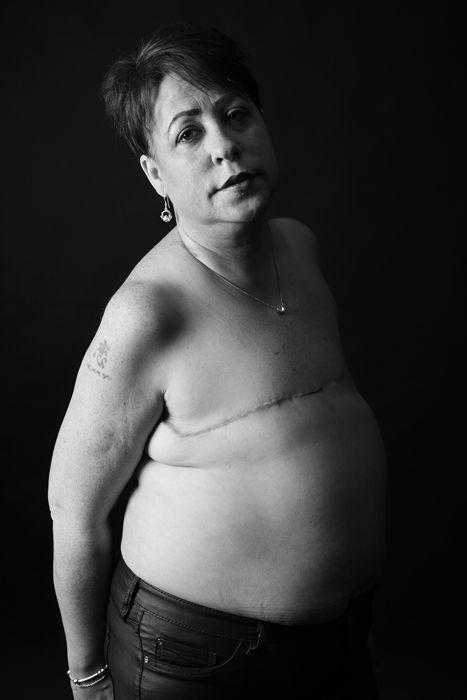 Masztektómián átesett nők mutatják meg bátran a testüket ...